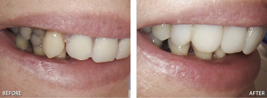 Pictures of partial dentures for back teeth