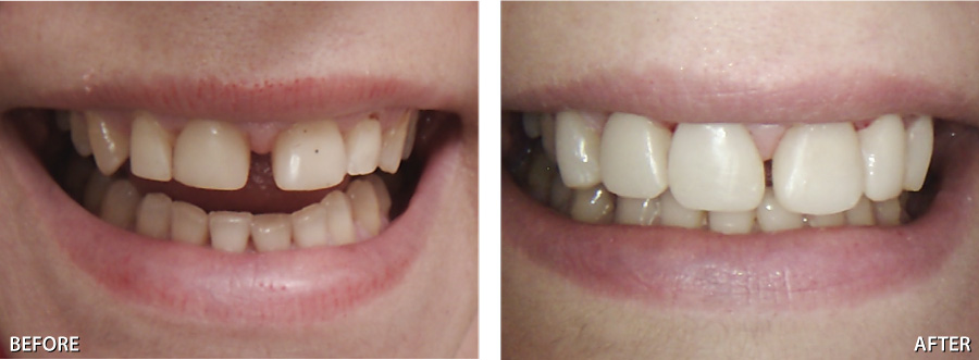 Happy Dental - Geelong West - Gentle, Caring andd Quality